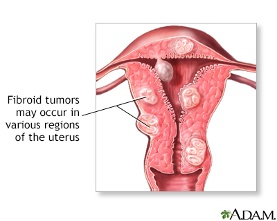 Fibroid tumors may not need to be removed if they are not causing pain ...