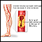 Atherosclerosis of the extremities